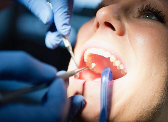 Odontoiatria di Prevenzione